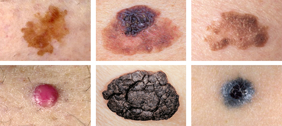 Six melanoma mimics