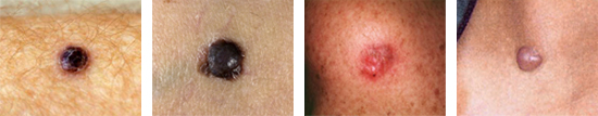 Four nodular melanomas...